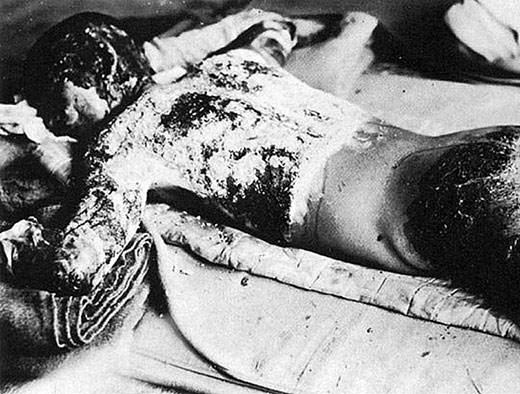 Torso of a boy exposed to the atomic bomb